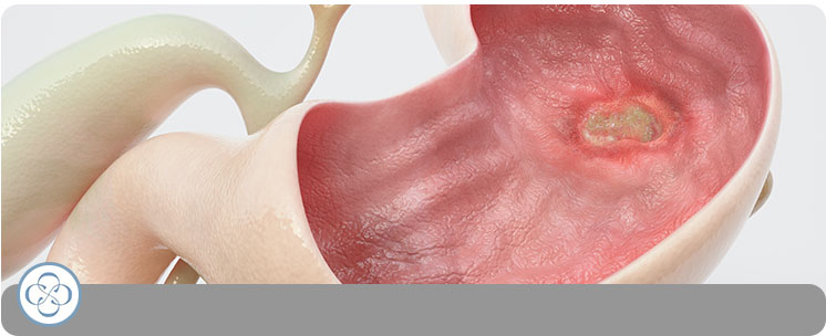 Peptic Ulcers - Concorde Gastroenterology in New York City, NY