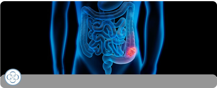 Colon Cancer / Polyps - Concorde Gastroenterology in New York City NY