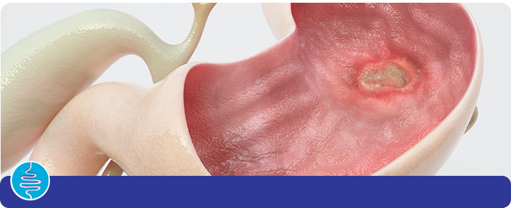 Peptic Ulcers - Vanguard Gastroenterology in New York City, NY