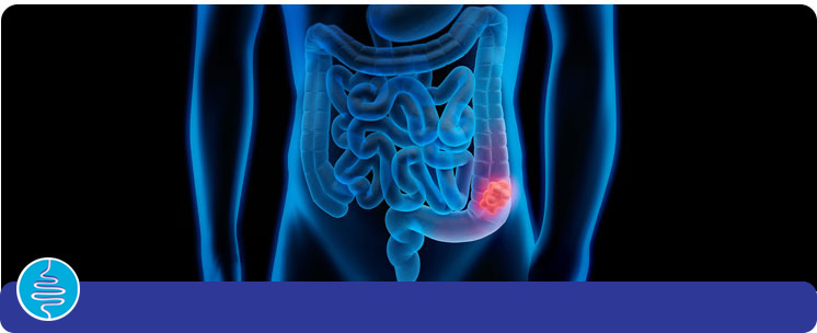 Colon Cancer / Polyps - Vanguard Gastroenterology in New York City NY